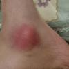 【激痛】歩き遍路で痛めたくるぶしの炎症と水ぶくれ