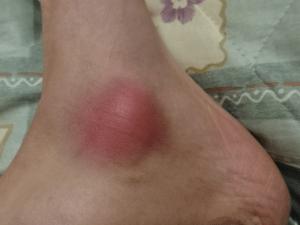 お遍路で痛めた足 (1)
