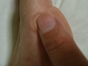 お遍路で痛めた足 (2)